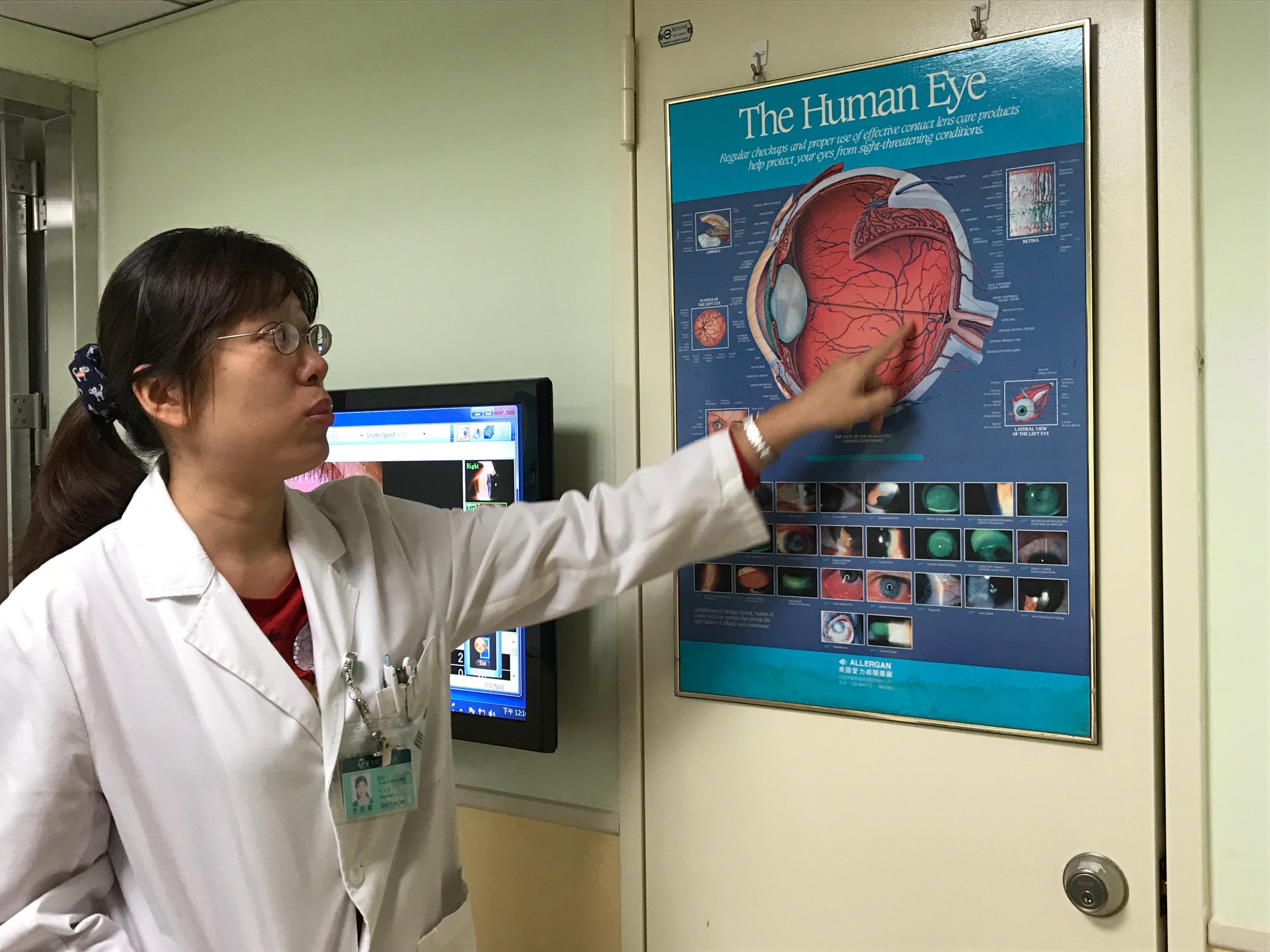 耕莘醫院安康院區眼科醫師李詩韻表示,若是越早近視,之後變成高度近視的危險性就會增加。攝影/高凡淳